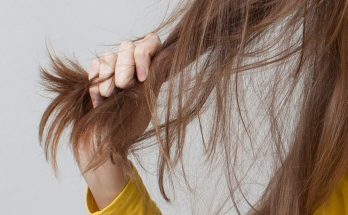 But I'm a Woman! What Is Causing My Hair Loss?