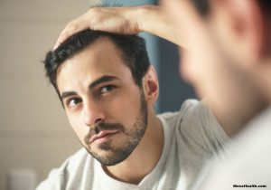 Can Hair Loss in Men Be Stopped?