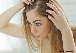 Female Hair Loss and Pattern Baldness (Alopecia) In Women