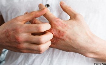 Top Skin Problem - 3 Common Skin Problems on Women and How to Deal With Them